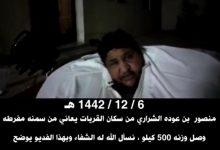 Photo of بالفيديو.. منصور الشراري بلغ وزني 500 كيلو وأناشد بعلاجي من السمنة المفرطة